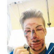 Schock-Foto! Der Skispringer nach seinem schlimmen Sturz (Foto)