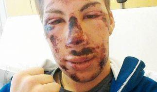 Skispringer Thomas Diethart nach seinem Horror-Sturz beim Weltcup in Brotterode. (Foto)
