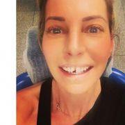 Stylisch ohne Zahn! Giulia Siegel hat Mut zur Lücke (Foto)
