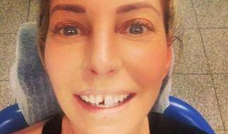 Giulia Siegel beim Zahnarzt: Die 41-Jährige brach sich einen Schneidezahn beim Ausmisten ab. (Foto)