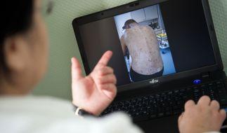 In NRW häufen sich die Fälle von Krätze. (Foto)