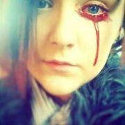 Dieses Mädchen blutet immer wieder aus Augen, Ohren und Nase (Foto)