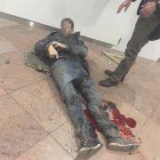 Dramatische Bilder: Ein Opfer am Flughafen erlitt schwere Verletzungen am Bein.
