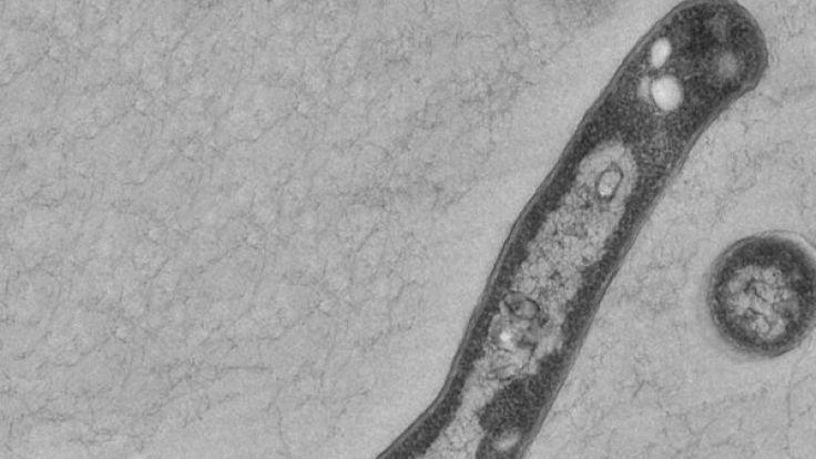 Der Tuberkulose-Erreger Mycobacterium tuberculosis. (Foto)