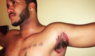 """Die Deo-Marke """"Old Spice"""" soll angeblich erhebliche Hautverbrennungen hervorrufen. (Foto)"""