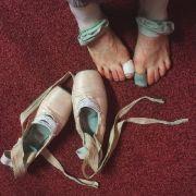WIDERLICH! So eklig sind die Füße einer Ballerina (Foto)