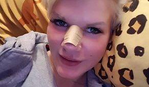 Melanie Müller hat sich ihre Nase richten lassen. (Foto)