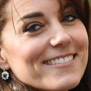 Braucht sie Botox? Herzogin Kate soll unters Messer (Foto)