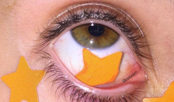 Unter dem Hashtag #eyexam werden nicht Haare oder Gesicht geschmückt, sondern die Augen: Ob Büroklammer, Farbe oder Sternchen - alles was dekorativ ist, wird unter das Lid gepackt. Wenn das mal nicht ins Auge geht ...