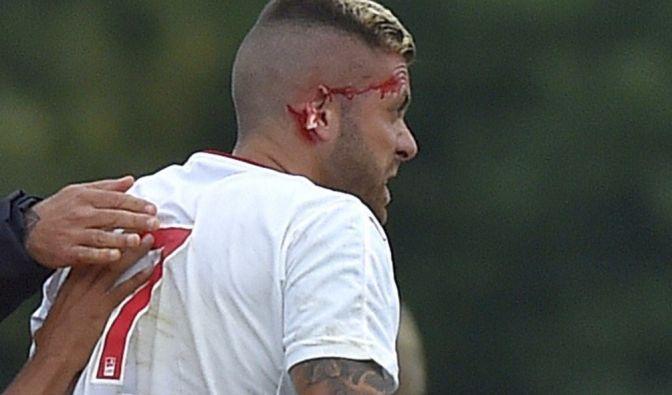 Horror-Verletzung!