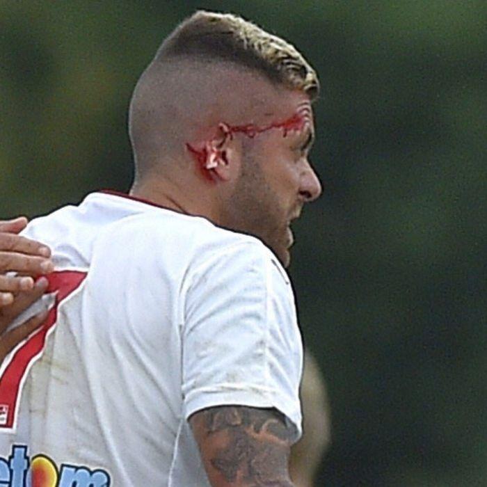 Fußball-Star verliert sein halbes Ohr (Foto)