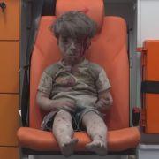 Das Elend des Krieges in einem Gesicht (Foto)