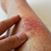 Diese Hautkrankheiten sind einfach ekelhaft (Foto)