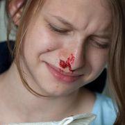 Was tun, wenn die Nase blutet? (Foto)