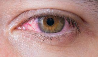 Patienten klagen über rötliche, tränende, juckende Augen. (Foto)