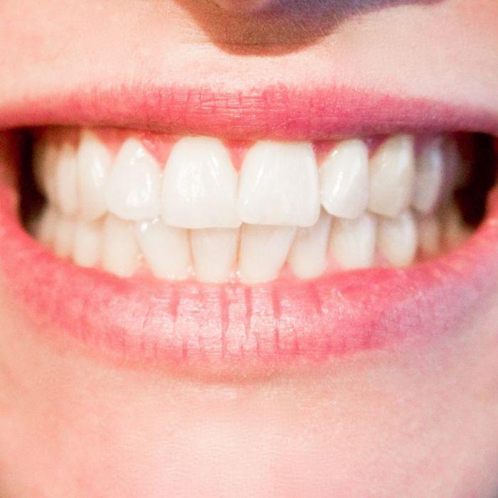 So bekommen auch Sie im Handumdrehen ein Hollywood-Lächeln (Foto)