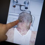 Wen juckt es? Hautkrankheit wieder auf dem Vormarsch (Foto)