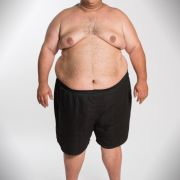 Der 38-jährige Guiseppe wiegt ungesunde 202,6 Kilo und steht kurz vor der Diabetes. Der Webdesigner aus Ulm muss endlich was tun.