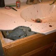 Das Waschbecken des E-Zigaretten-Opfers ist nach der Explosion völlig zerstört.