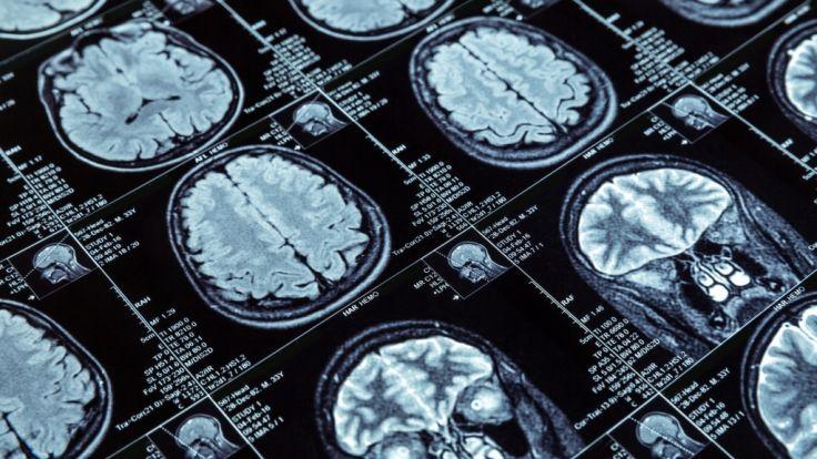 Ein gefährlicher Parasit löst Hirnhautentzündung aus. (Foto)