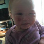 Sonnencreme fügt Baby schwere Verbrennungen zu (Foto)