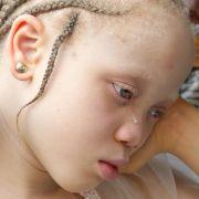 Albinokinder von Medizinmännern verstümmelt (Foto)