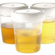DAS verrät die Urinfarbe über Ihre Gesundheit (Foto)