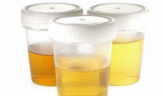 Die Farbe des Urins verrät so einiges über die menschliche Gesundheit. (Foto)