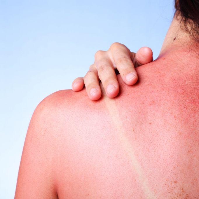 DIESE Medikamente lassen die Haut verbrennen (Foto)