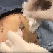 Ekel-Video! Ärztin quetscht grauen Eiter aus 50-jähriger Zyste (Foto)