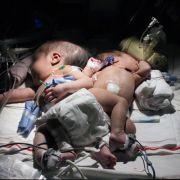 Grausame Versuche! Forscher experimentierten mit Siamesischen Zwillingen (Foto)