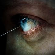 """Eispickel ins Gehirn - So wurden psychisch Kranke früher """"geheilt"""" (Foto)"""