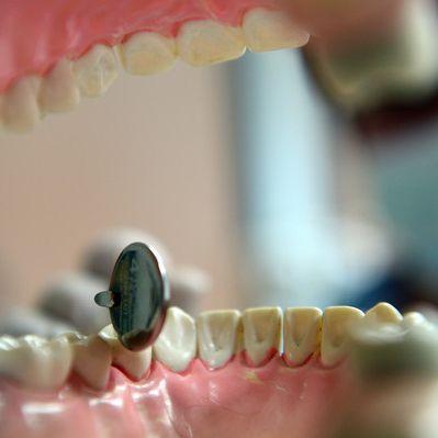 Aspirin soll verfaulte Zähne retten (Foto)
