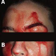 Wie im Horrorfilm! Patientin quillt Blut aus der Haut (Foto)