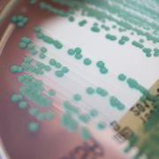 Eine Petrischale mit MRSA-Keimen (Methicillin-resistenten Staphylococcus aureus).