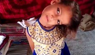 Ein neunjähriges Mädchen leidet unter einer schweren Genickmissbildung. (Foto)