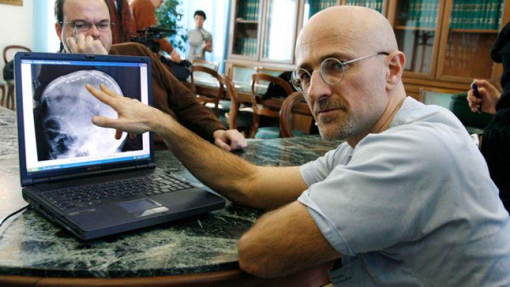 Der italienische Chirurg Sergio Canavero möchte die erste Kopftransplantation weltweit durchführen.