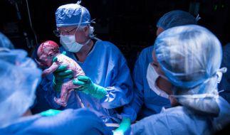 Erstmals ist in den USA ein Baby nach einer Gebärmutter-Transplantation geboren worden. (Foto)