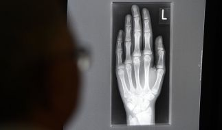 Ein Röntgenbild auf einem Bildschirm zeigt in einem Klinikum die linke Hand eines jungen Menschen im Alter zwischen 16 und 19 Jahren. (Foto)
