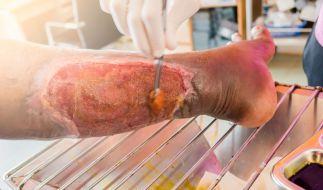 Durch Hautverletzungen kann es zu einer lebensgefährlichen nekrotisierenden Fasziitis kommen. (Symbolbild) (Foto)