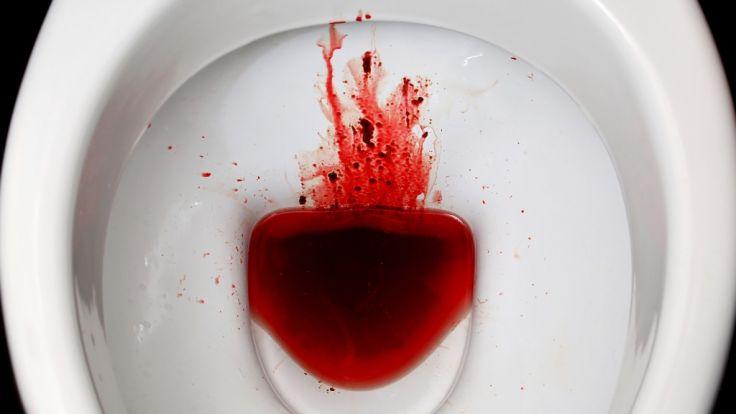 Nadine Lee trinkt ihr eigenes Menstruationsblut, weil sie sich damit angeblich fitter fühlt.