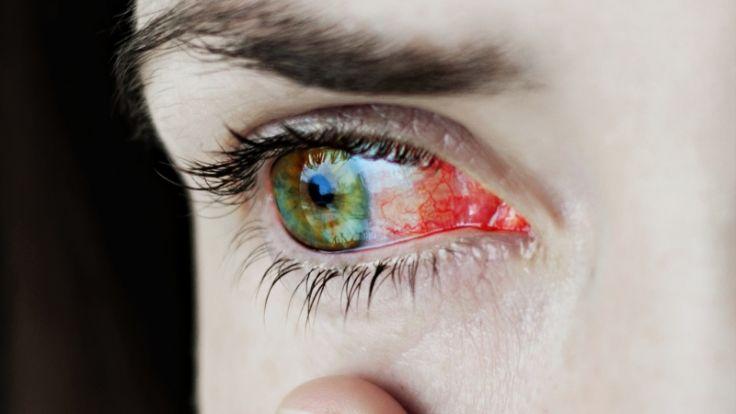 Eine Frau aus Indien blutete plötzlich aus den Augen (Symbolbild). (Foto)