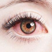 Widerlich! Frau stecken 14 Würmer im Auge (Foto)