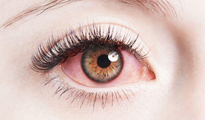 Nachdem ihr Auge rot wurde, entdeckte eine Frau einen Wurm darin.