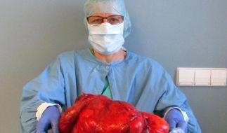 Eine OP-Mitarbeiterin hält nach einer OP einen fast 5 Kilogrammm schweren Tumor, der zuov einer 50-jährigen Patientin aus dem Bauch entfernt wurde. (Foto)