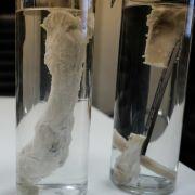 Erstmals im Labor gezüchtete Knochen implantiert (Foto)