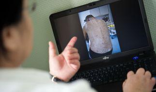 Die Obdachlosen-Ärztin Jenny De la Torre zeigt ein Foto auf ihrem Laptop von einem Patienten, der von Krätze befallen ist. (Foto)