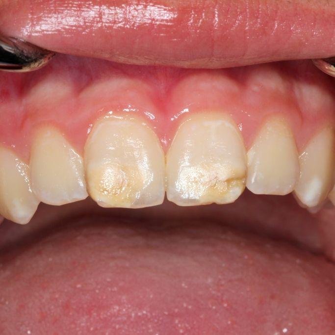 Zahnärzte warnen: So gefährlich ist die neue Volkskrankheit (Foto)