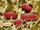 Ehec-Infektionen in USA