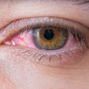 Frau rammt sich bei Auto-Unfall Eyeliner ins Auge (Foto)